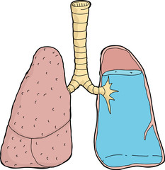 Water In Lungs