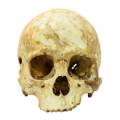 Human Skull Fracture (Mongoloid,Asian) on isolated background