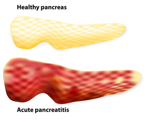 Pancreatitis. The differences between healthy pancreas and infla