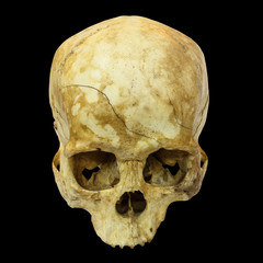Human Skull Fracture(top side,apex)(Mongoloid,Asian) on isolated