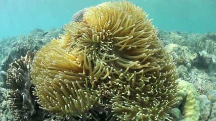 Giant Anemone Tentacles