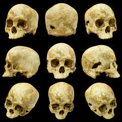 Collection of human skull (Mongoloid) and broken skull