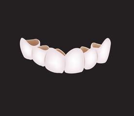 corona denti protesi