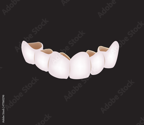 corona denti protesi - 71160296
