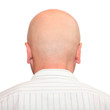 Hairless head with space for your text.