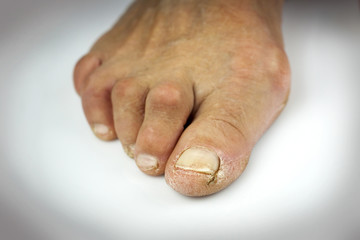 Cracked toe on white background