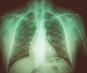 Retro look Medical X-rays