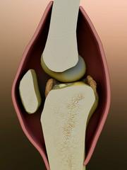 arthritis, knee