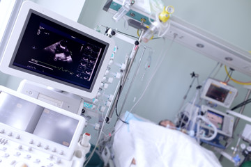 Screen with the image of heart ultrasound in a hospital ward
