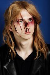 Man beaten up after a fight