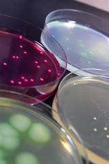 研究イメージ 細菌の鑑別
