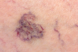 Close-up of skin with varicose veins poster