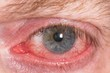 Постер, плакат: Almost open red and irritated eye with blood vessels