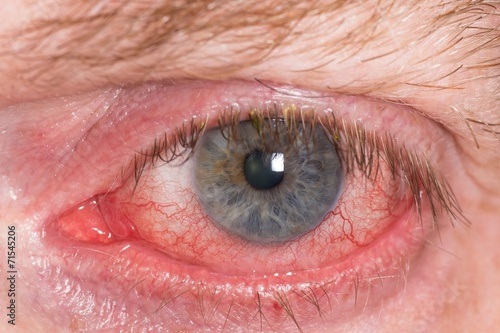 Almost open red and irritated eye with blood vessels - 71545206