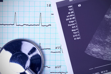 Stethoscope and medical documents. close-up photo