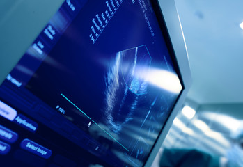 Heart on the screen of ultrasound machine