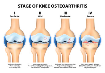 Stages of knee Osteoarthritis (OA).
