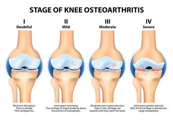 Stages of knee Osteoarthritis (OA).