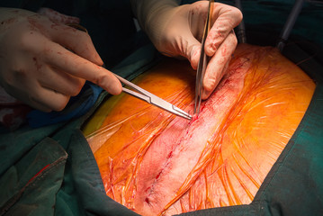 suture close sternum incision