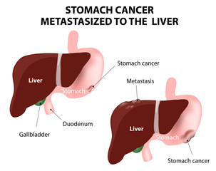Stomach cancer Metastasized to the  liver