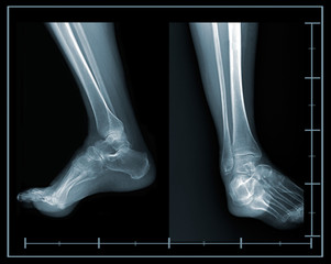 X-ray foot lateral and front view