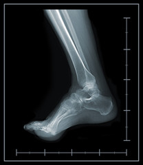 X-ray foot and ankle lateral view