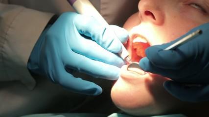dentist removes tartar patient