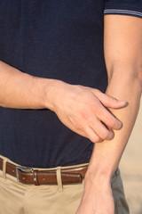 Mann kratzt sich am Arm