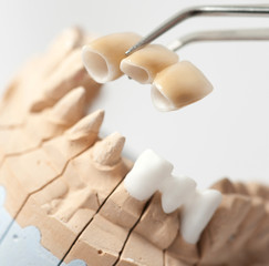 Dental prothetic