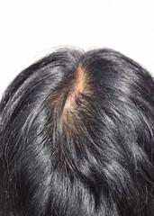 50代男性の髪の毛のイメージ