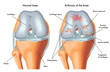 artrosi del ginocchio - 71820063