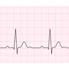 Illustration of medical electrocardiogram - ECG on chart paper