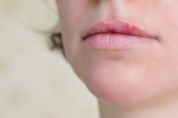 Herpes virus on female lips