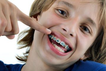 Orthodontie - Enfant montrant ses bagues