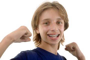 Enfant avec bagues d'orthodontie aux points levés
