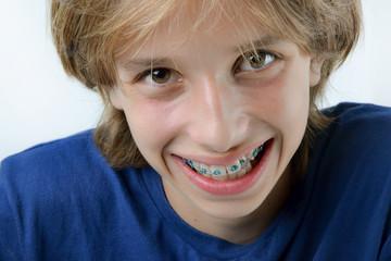 Regard d'enfant avec bagues d'orthodontie