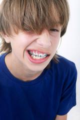 Enfant montrant son baguage orthodontique