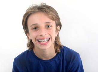 Portait d'enfant avec bagues d'orthodontie