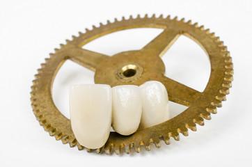 Zahn der Zeit 4