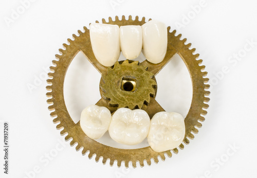 Zahn der Zeit 2 - 71937209