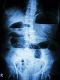 Small bowel obstruction. X-ray abdomen: small bowel dilated poster