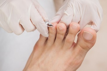 Customer getting toe nails clipped