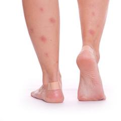 Waden voller Mückenstiche - isoliert