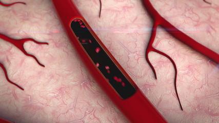 blood vessels, erythrocyte