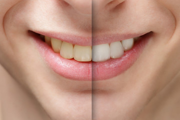 young man smile before and after teeth whitening