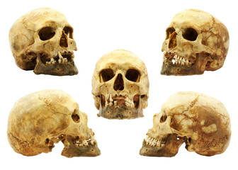 Genuine human skull isolated on white, lipids makes skull yellow