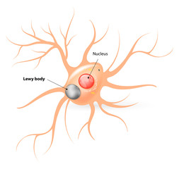 Lewy body. Parkinson's disease and Alzheimer's disease