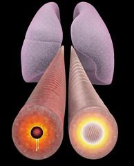 Asma, bronco, sezione, polmone, sintomi