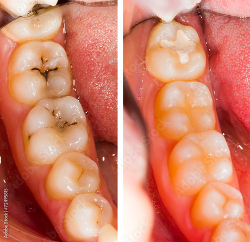 At the Dentist - 72495815