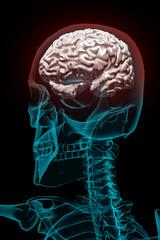 Cervello umano arrossato